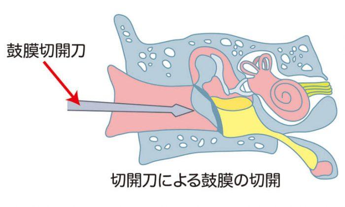 鼓膜切開術、鼓膜チューブ挿入術で生じる鼓膜の穴について
