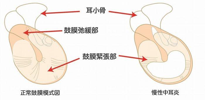 慢性化膿性中耳炎