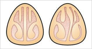 鼻づまりを引き起こす鼻中隔弯曲症
