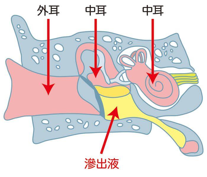 滲出性中耳炎になるのはなぜ?